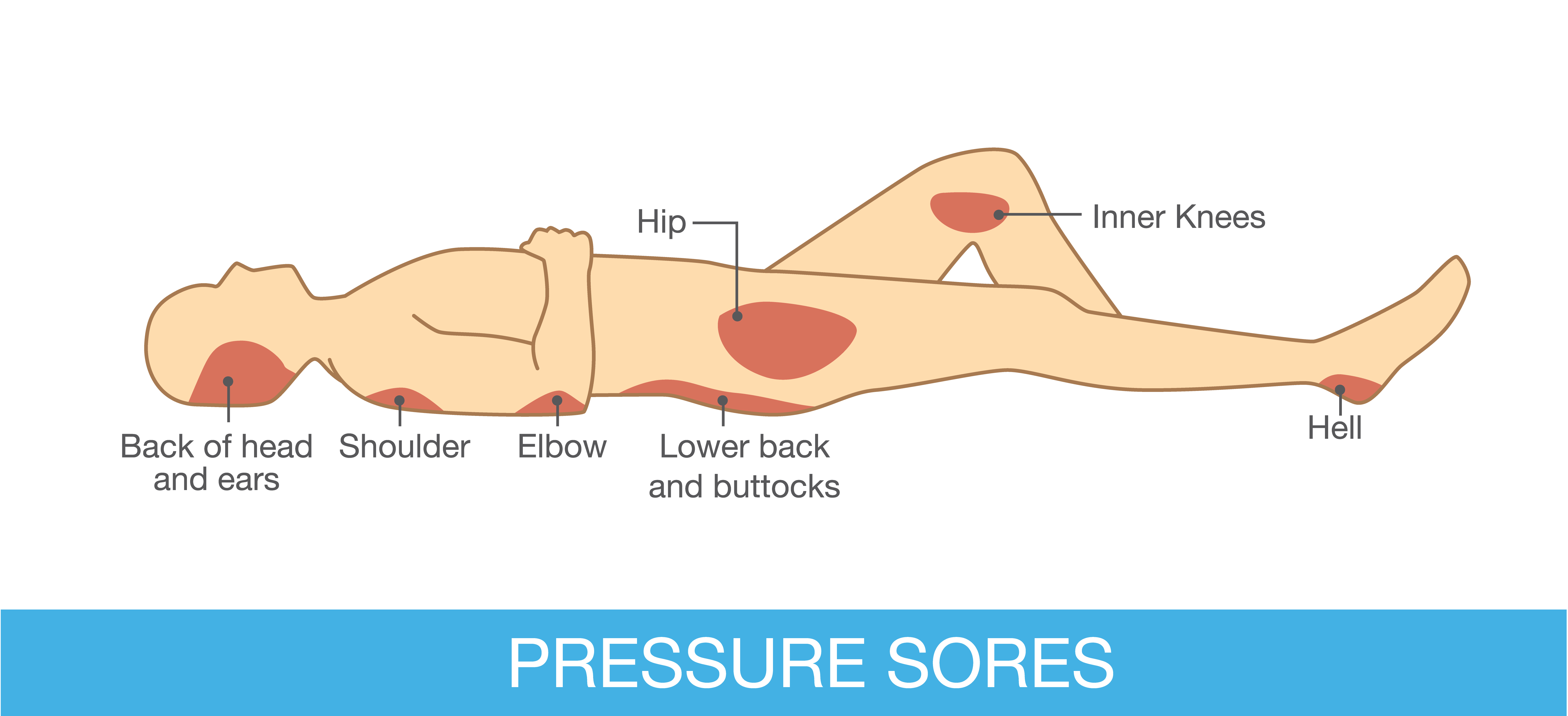 Development Of Pressure Ulcers  Causes And Signs